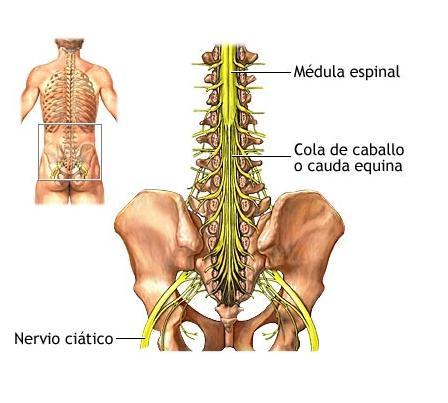 Tratamiento-para-la-ciatica